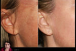 Before-After-cheek-PlasmaGlo-RajaniMD
